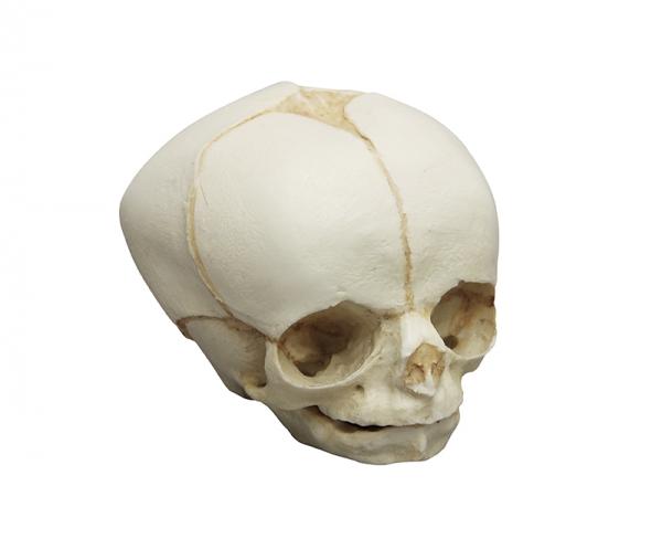 Fetal Skull 30 Weeks Skulls Skeleton Models Anatomical Models